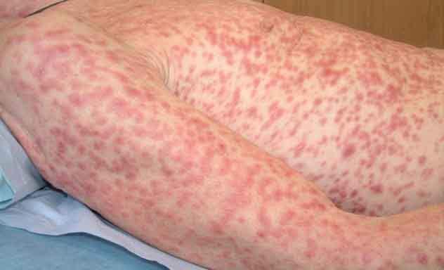 сыпь на теле при сифилисе